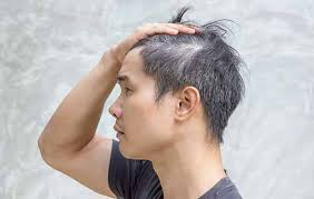 grey hair in s here s what you can do