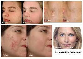 Blue Light Therapy Acne Results Led Skin Treatment In Mumbai Light Therapy For Skin