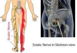 sciatic nerve pain in leg relief