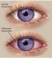 acute viral conjunctivitis or pink eye is a mon highly conious but not serious infection for which home care is usually sufficient