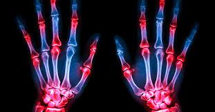 Quais são as complicações da Artrite Reumatóide?
