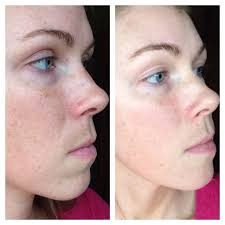 arbonne genius and re9 advanced skin care before left and after one month of reducing redness redness around my nose how to apply makeup