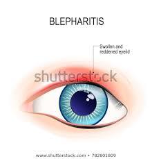Eyelid Anatomy Eye Human Blepharitis Inflammation Reddening Eyelid Stock Vector