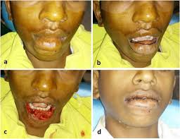 reconstruction of acquired lip defects