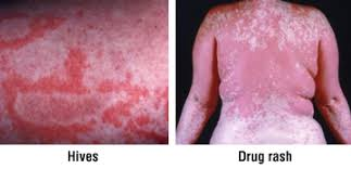 Rash Guide: Causes, Symptoms and Treatment Options