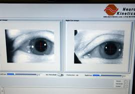 Eye Light Test For Concussion Nfl Partners Award 500 000 Grant To Further Study Ohara