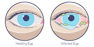 Pink Eye: Usually Mild and Easy to Treat | Features | CDC