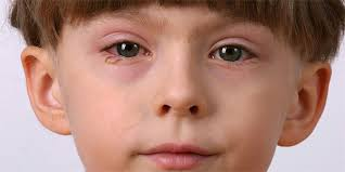 pink eye disease or condition of the