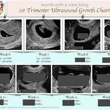 1st Trimester Growth Chart Archives Womb With A View Blog