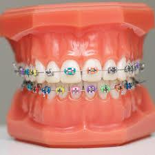 Image result for normal braces