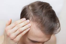 It's linked to a hormonal imbalance that can cause hair to grow in the wrong places (like the face) but thin out in desirable locations (like the scalp). Itchy Scalp Causes And Connections To Hair Loss Trichology