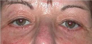 litteken masseren na ooglidcorrectie