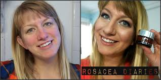 bye bye redness it cosmetics cc cream demo and review rosacea diaries you