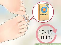 image titled get rid of foot fungus at home step 2