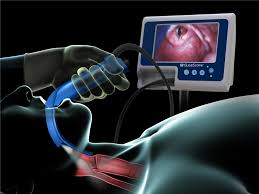 laryngoscopy. video laryngoscopy or direct for trainees
