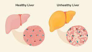 fatty liver causes symptoms and