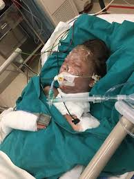 Appeal For Abbey, Critically Injured In SR Explosion ⋆ Cambodia News English