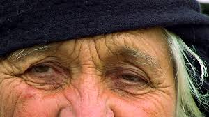 Image result for wrinkles on face images