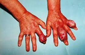 criza de rinichi simptome