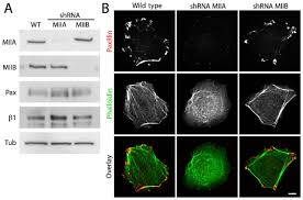 An Ii B B Myosin Iia Deficient Cells Migrate Efficiently Despite Reduced