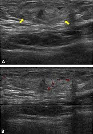 sonography of abdominal wall mes and