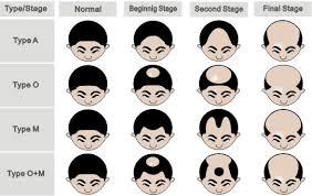 Male Pattern Baldness Signs