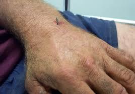 nail gun injuries litfl