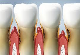 Imagini pentru parodontoza
