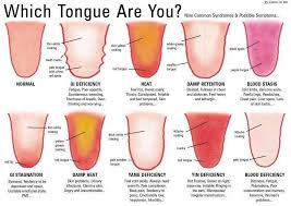 Ayurveda Tongue Chart Ayurveda Tongue Diagnosis First Indications Of Illness