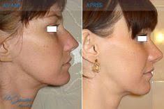 <b>...</b> avant/après intervention Rhinoplastie du chirurgien Dr Hassen <b>BEN JEMAA</b> - 585923