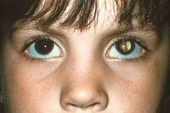 Photos Can Help Diagnose Children's <b>Eye</b> Problems and Save Sight