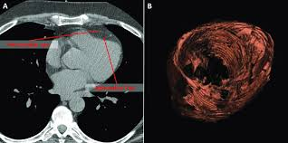 pericardial sac fig 1 epicardial fat quantification from cardiac ct examination