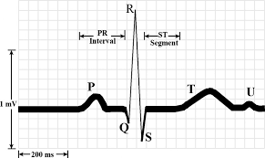 Normal Ecg Pattern