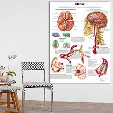 Us 13 2 45 Off Anatomy Of Brain In Stroke Anatomical Chart Neurological Posters Pathology Canvas Wall Pictures For Medical Education Home Decor In