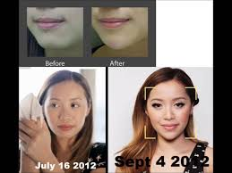 Youtube facelift surgery