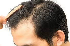 Why Would You Be A Good Candidate What Makes You A Good Candidate For A Hair Transplant