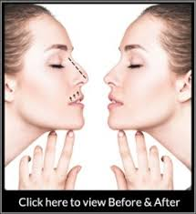 Plastic surgery is generally considered an. Rhinoplasty Beverly Hills Top Nose Job Los Angeles Bhpsg