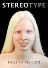melanistic vs albino humans. Delighful Humans Melanistic And Albino People  Photo19 For Vs Albino Humans M