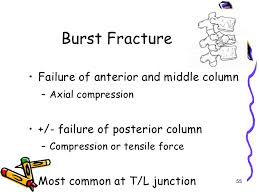 compression force injury. 55. compression force injury