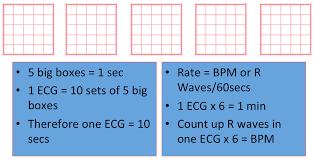 Ecg Basics Rebel Em Emergency Medicine Blog