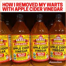 apple cider vinegar for warts this