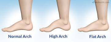 Flat Footed Mandurah Physio Flat Feet Vs High Foot Arch