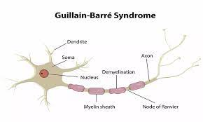 Guillain-Barre syndrome: Study