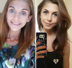 anorexic face before after. Plain Face 32 The Picture Says It All For Anorexic Face Before After L