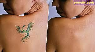 Odstraňte Laserové Tetování
