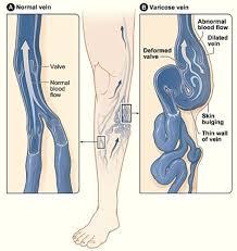 Simptome, cauze, prevenție și tratament