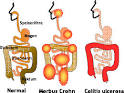 Homöopathie - BKK BPW