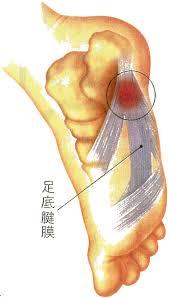 「足底腱膜炎」の画像検索結果