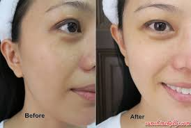 before after mary kay melacep plus luminous system review
