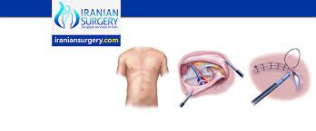 hernia repair surgery what is a
